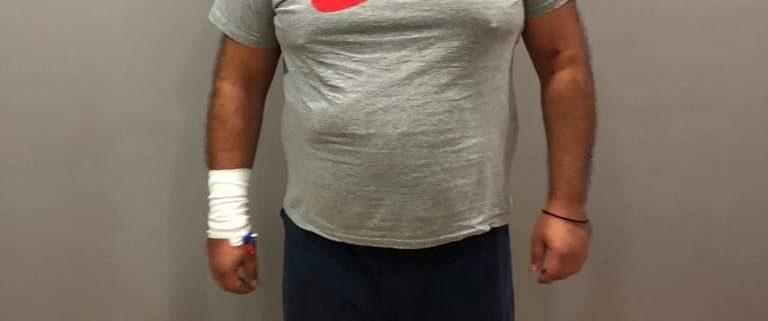 γαστρικο μανικι παχυσαρκια