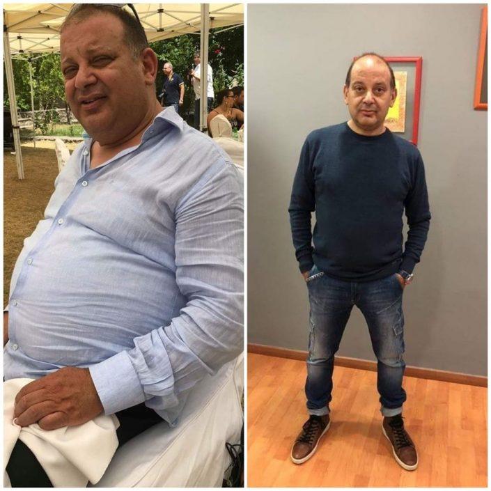 γαστρικο μανικι επεμβαση παχυσαρκιας
